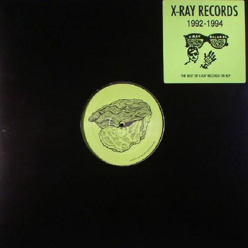 X-Ray Records 1992-1994